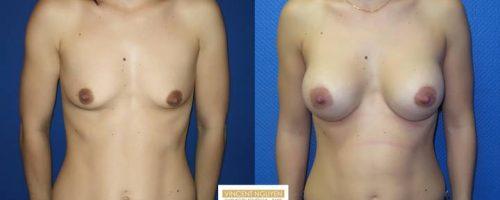 Prothèses mammaires - résultats à 3 mois (3)