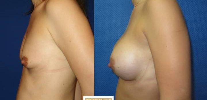 Prothèses mammaires - résultats à 3 mois (5)