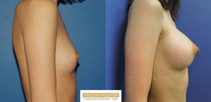 Prothèses mammaires DUAL PLAN - résultat à 2 mois (5)