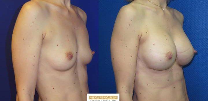 Prothèses mammaires - résultat à 1 mois (1)