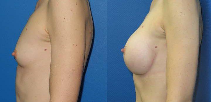 Prothèses mammaires - résultat à 2 mois