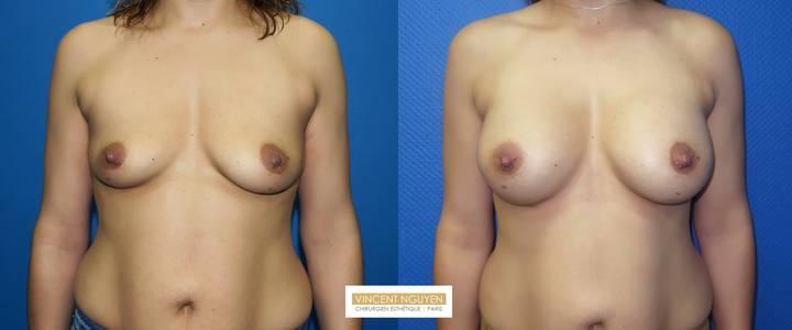 Prothèses mammaires - résultat à 6 mois(4)