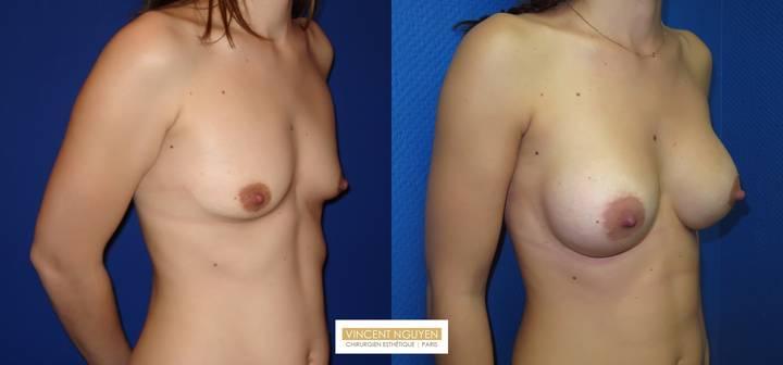 Prothèses mammaires - résultats à 3 mois (1)