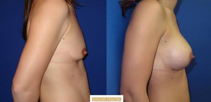 Prothèses mammaires - résultats à 3 mois (4)