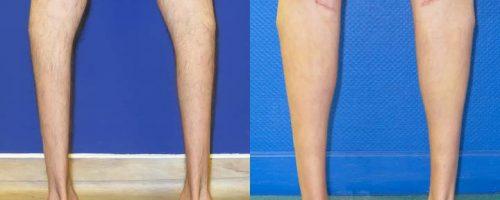 Protheses de mollet - résultat à 2 mois