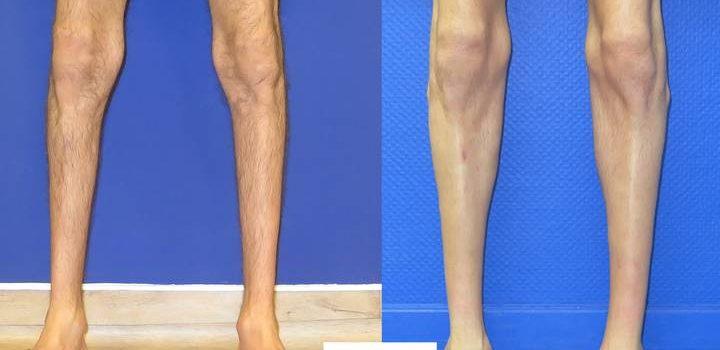 Protheses de mollet - rsultat à 2 mois