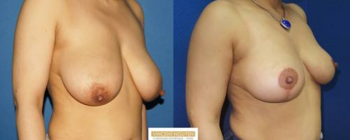 Ptose mammaire - résultat à 3 mois