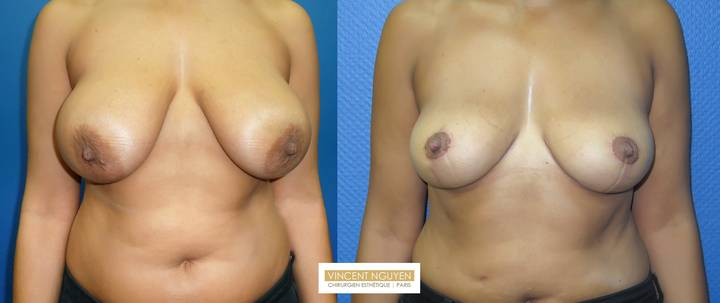 Réduction mammaire - résultation à 3 mois