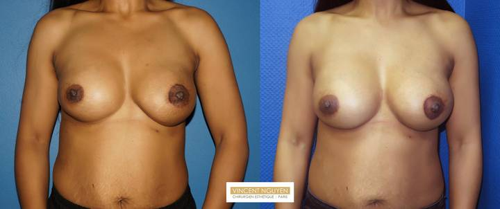 Rattrapage prothèses mammaires pour asymétrie - résultat à 3 mois