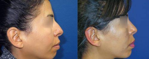 Rhinoplastie - résultat à 6 mois