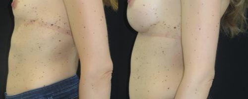 Augmentation mammaire prothèse type dual plan