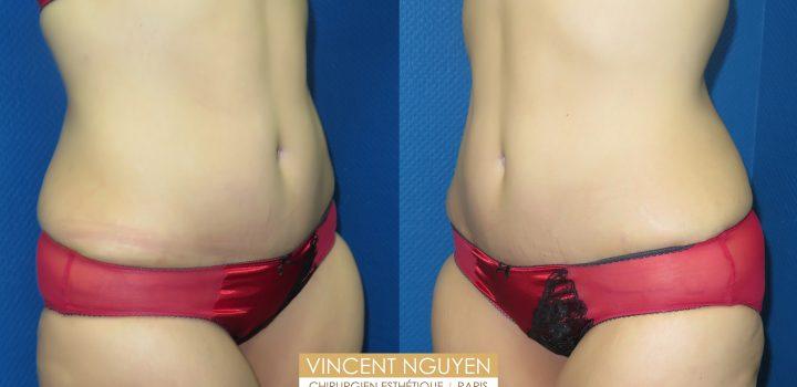 Plastie abdominale avec transposition de l'ombilic