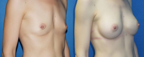 Augmentation mammaire par prohèse, DUAL plan et voie péri-aréolaire