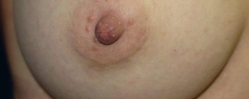 cicatrice péri-areolaire pour augmentation mammaire par prothèse