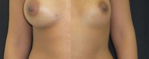 lipofilling mammaire. (droite : avant / gauche : après)