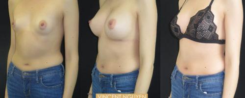 Augmentation mammaire par prothèse en dual plan, cicatrice sous-mammaire.