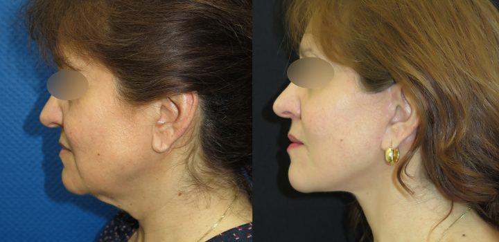 Lifting cervico-facial - résultat à 9 mois
